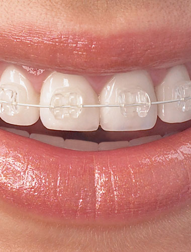 Teeth Radiance